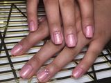 Alungirea unghiilor, corectie, acoperire