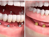 Зубные протезы (All-on-4 & All-on-6), Протезирование зубов в Кишинёве