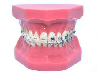 Model typodont patologic ortodontic stomatologic