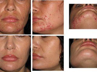 Urgent Sapun pentru acnee, cosuri si puncte negre prin spalare dermatologica curata delicat pielea!