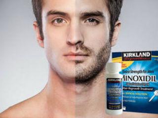 Minoxidil - революционное средство для роста волос.