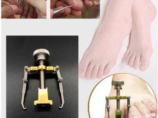 Педикюр - Вросший ноготь на ноге