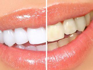 Отбеливание зубов в Кишинёве