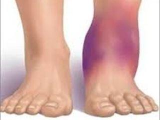 de ce vârful piciorului meu se umflă și mă doare ameliorarea durerii gleznei