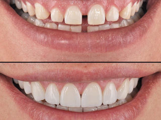 Faţete dentare (venire), Chişinău, Moldova