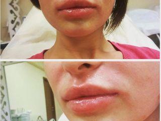Гиалуроновая кислота, мезотерапия, пилинг, липолиз, botox,Увеличение губ ,marirea buzelor