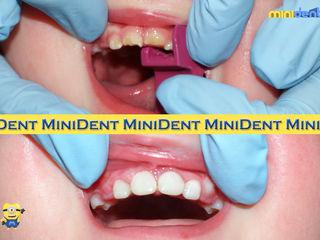 Детская стоматология, без общего наркоза.