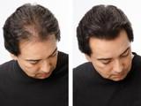 Топпик-загуститель волос,маскировка пробора при выпадении волос!