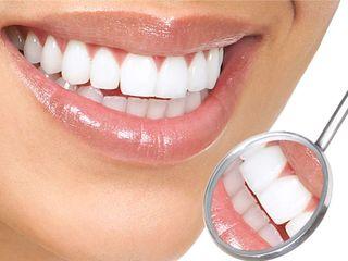 Certificat cadou pentru albirea express a dinţilor de la «Brilliant Smile»