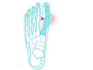 conuri pe articulațiile degetelor de la picioare