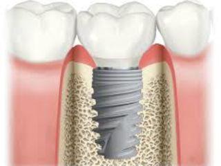 Tu meriti un implant dentar in cazul unui dinte lipsa,la pret de doar 169 €.