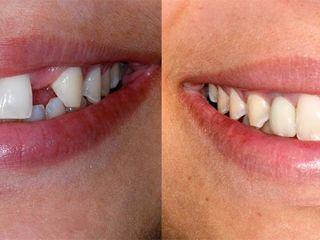 Имплант зуба, имплантация зубов в Кишинёве