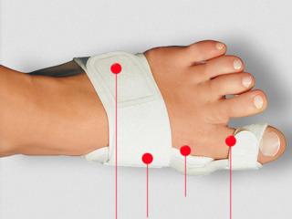 Лечение вальгусной деформации стопы с помощью фиксатора!