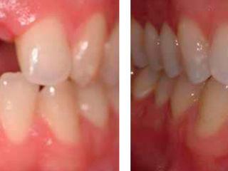 Implant dentar, Implantarea dentară în Chișinău