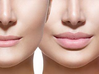 Увеличение губ гиалуроновой кислотой. Консультация бесплатная!