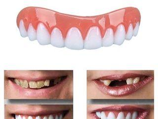 Perfect Smile Veneers-съемные виниры