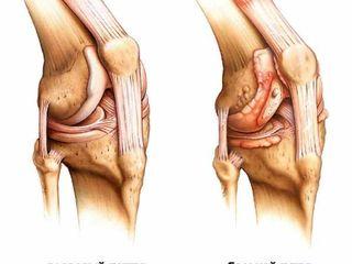 Leziunile de menisc - Pentru a restabili genunchiul
