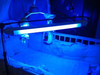 Лампа для фототерапии (лечение желтухи у новорожденных)  Lampa pentru scăderea bilirubinei la copii