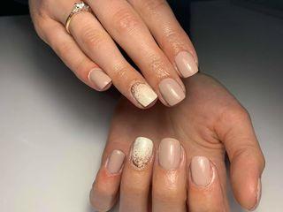 Alungirea unghiilor ,corecție  ,acoperire