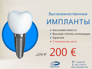 "Акция! Имплантация зубов в Кишинев 200 Евро. ""ClasicDent"""