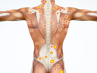 Masaj terapeutic general + (trigger points)