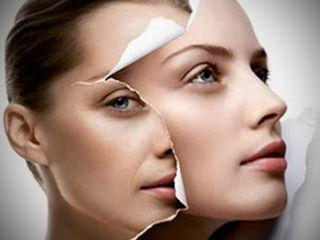 Безинъекционная мезотерапия это лучшее средства ухода за своей внешностью, молодостью и здоровьем!