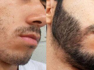Оригинальный Minoxidil - революционное средство для роста волос и бороды!