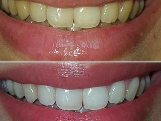 Отбеливание Зубов в домашних условиях от White Light!
