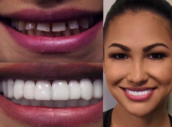 американское отбеливание зубов