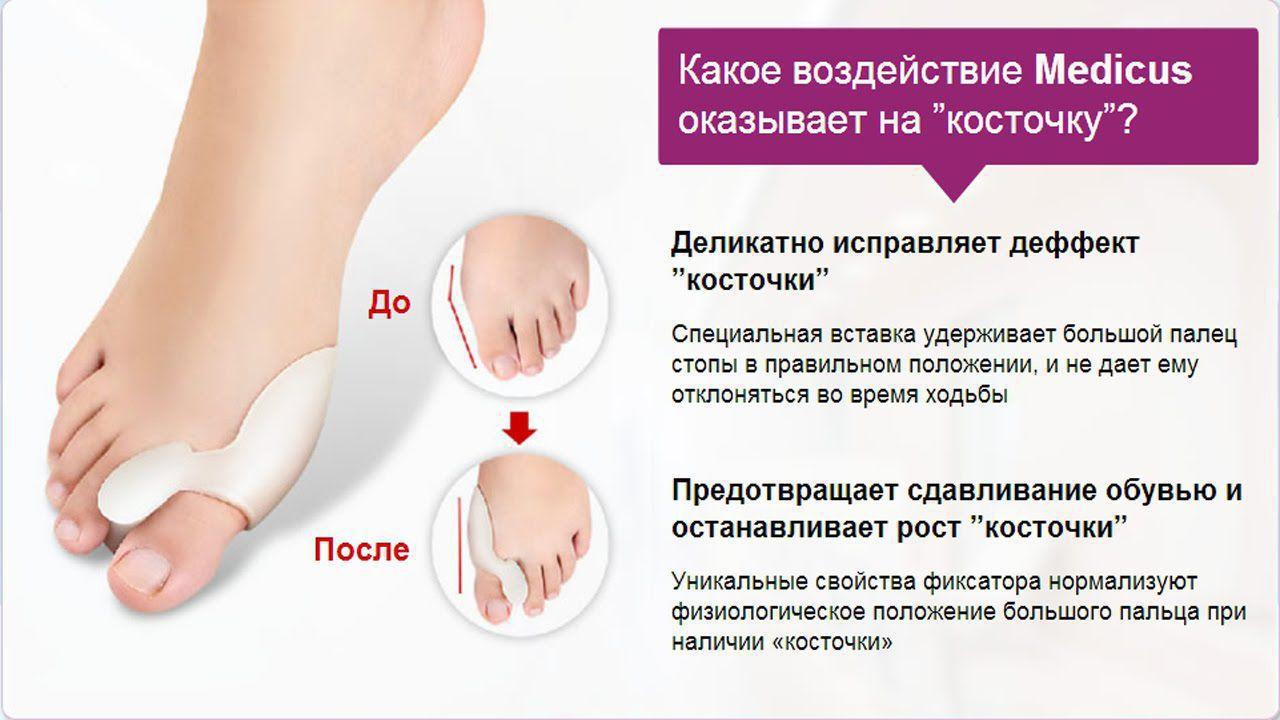 Косточки на ногах лечение в домашних условиях отзывы