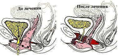 elektrostimulyator-urologicheskiy-dlya-vlagalisha