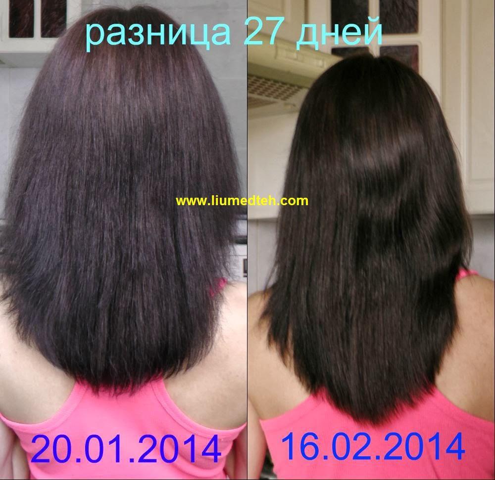 Какая еще перхоть и выпадение волос от дарсонваля???