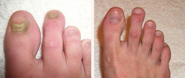 Cum scapam definitiv de onicomicoza sau ciuperca unghiei