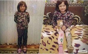Жизнь без боли: Эвелине необходима ваша помощь, чтобы ходить