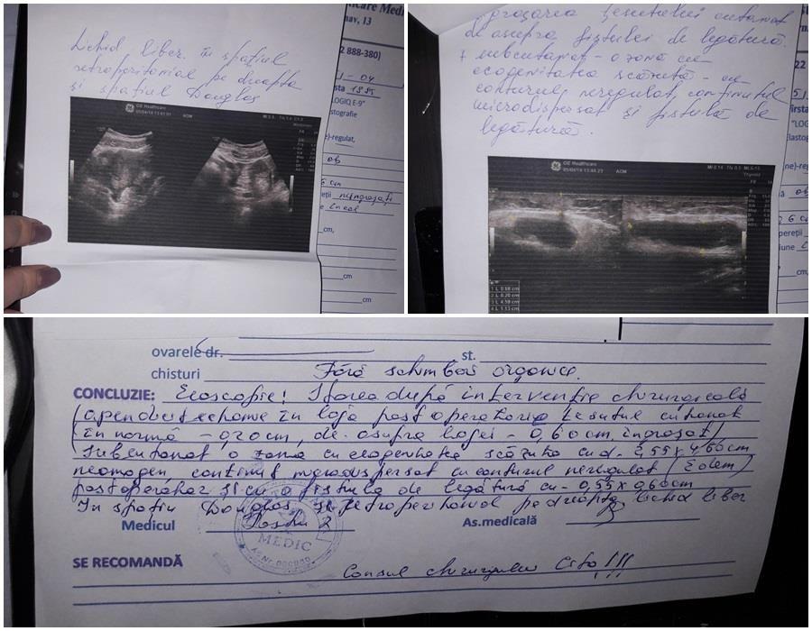 Операция в больнице Кишинева cтала адом для женщины из-за того, что она отказалась дать взятку врачу