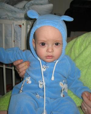Бельмо у ребенка фото