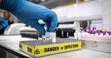 Ученые прогнозируют скорое появление нового коронавируса
