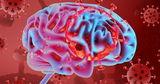 Ученые: Коронавирус провоцирует неврологические осложнения