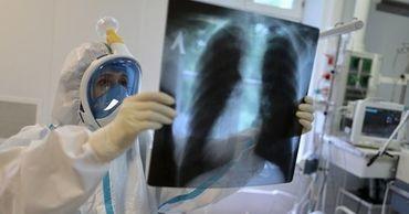 Ученые об иммунитете: Человек будет болеть ковидом каждые 505 дней
