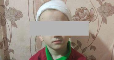 Женщина обвиняет детский сад в том, что у ребенка травма головы.