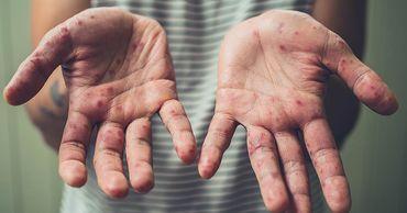 В ВОЗ рассказали о рекордном уровне заболеваемости корью в мире за более чем 20 лет.