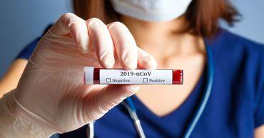 В Молдове зарегистрировали 153 новых случая COVID-19.