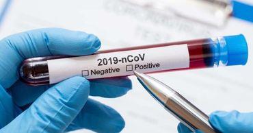 В Молдове зарегистрировали 347 новых случаев COVID-19.