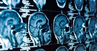 В Японии ученые оживили мертвый мозг.