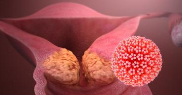 США избавятся от одного из самых массовых типов рака в течение 20 лет.