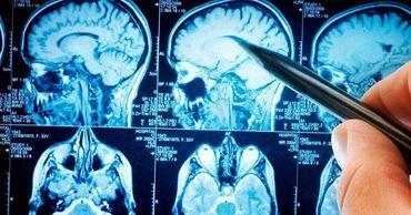 Ученые описали повреждения мозга, связанные с COVID-19.