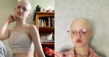 Лысая и глухая девушка с редким заболеванием стала моделью