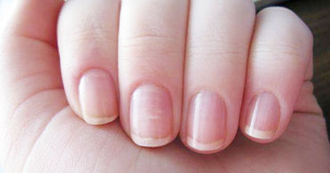 Явный признак перенесённого ковида предложили искать в цвете и форме ногтей.