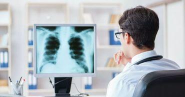 Ученые назвали первые признаки поражения легких.