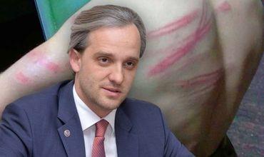 Министр обороны прокомментировал избиение солдат